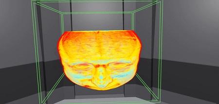 MedicalImagingVR (Steam VR)
